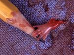 Ребёнок, убитый абортом на 10-й неделе