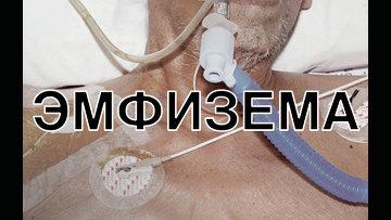 e1 - Министерство здравоохранения и социального развития России взяло на вооружение наш метод работы
