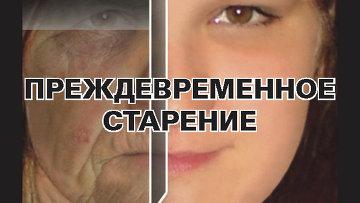 e2 - Министерство здравоохранения и социального развития России взяло на вооружение наш метод работы