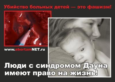 deti s sindromom dauna - «Нет фашизму!» - сказали Воины Жизни главному гинекологу Санкт-Петербурга Эдуарду Айламазяну